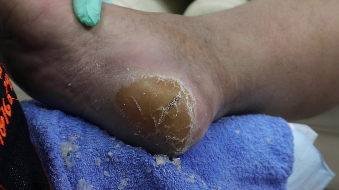 Ep_872 Foot skin removal 👣 ส้นเท้าแตกทำอย่างไรดี ? 😊 (This clip from Thailand)
