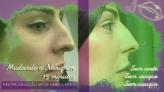 Baixar RINOMODELAÇÃO NOVAMENTE- APOS 1 ANO E MEIO | AMANDA MELLOS