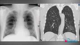 Коронавирусная пневмония. Как лечить? Здоровье.  10.05.2020