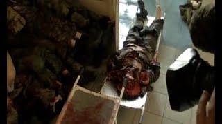 В больницах Донецка 43 раненых, в моргах - 36 погибших