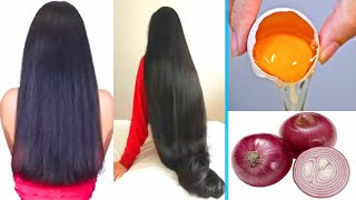 HOW TO GROW LONG and Thicken Hair Faster With Onion & Egg| Magical Hair Growth Treatment 100% Works