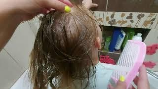 Корочки на голове у ребенка после 2 лет! Всего 1 средство. Реальное видео!