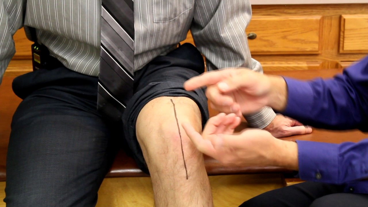 How To Make A Knee Replacement Scar Look Good and Feel Good