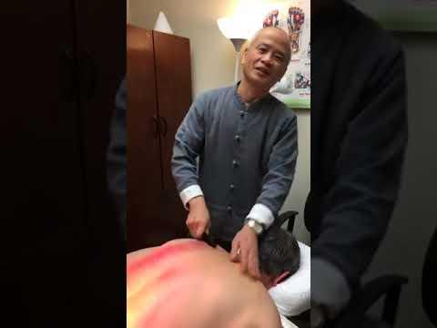 Gua Sha -  Healing the flu
