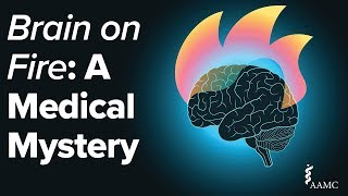 Brain on Fire: A Medical Mystery
