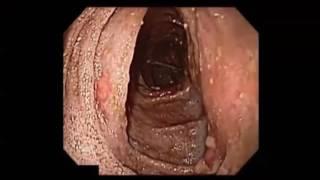 Esophageal Introitus (DV061)