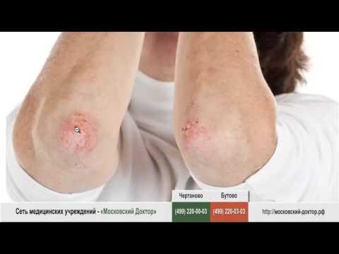 Аллергические высыпания на локтях