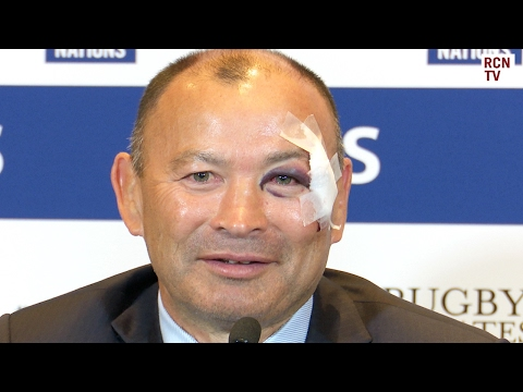 England Eddie Jones Interview Rugby Six Nations 2017