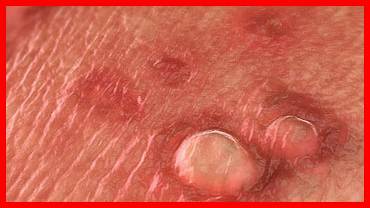 HPV Treatment: Warts, Genital Warts, Cervical Dysplasia HPV Treatment: Warts, Genital Warts, Cervical Dysplasia new pics