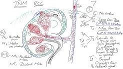 hqdefault - Tnm Staging Of Kidney Cancer
