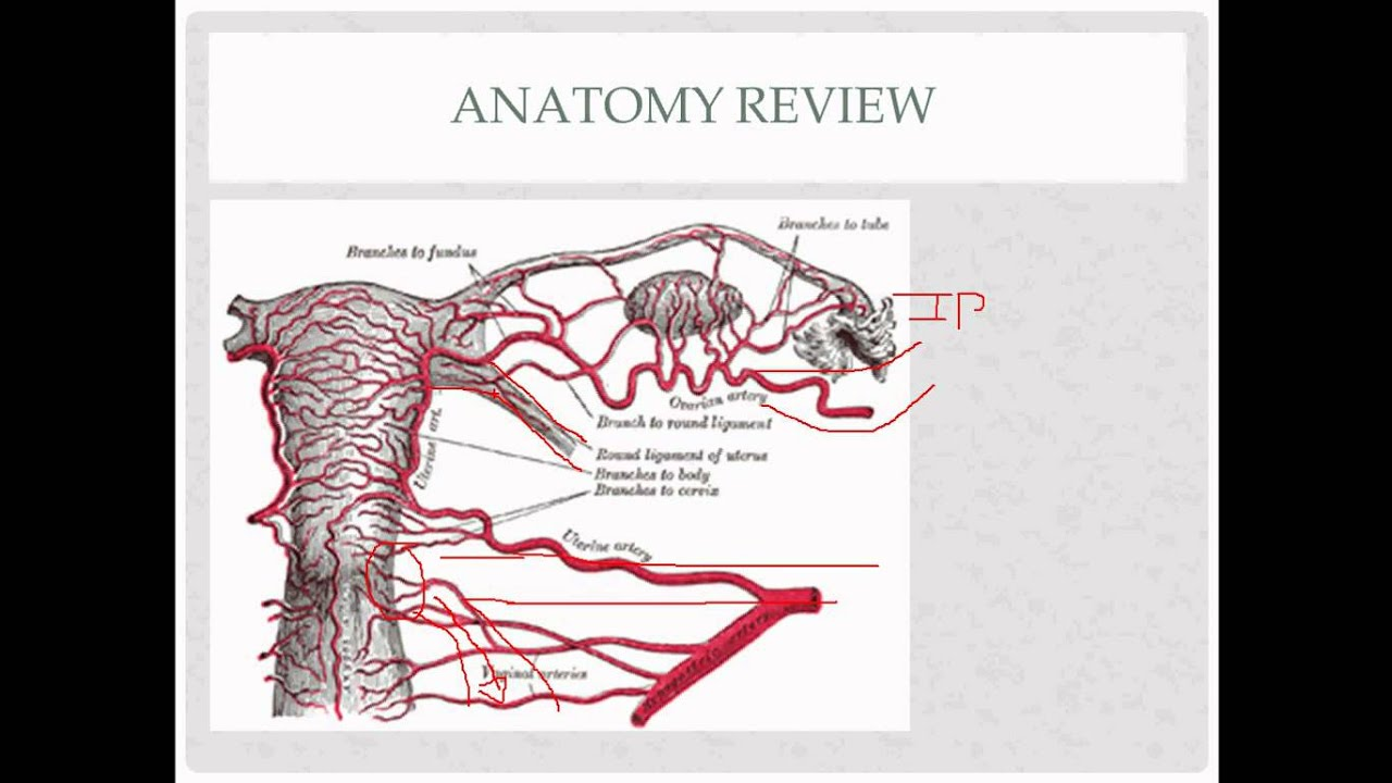 vaginal hysterectomy - description, indications, and questions - YouTube