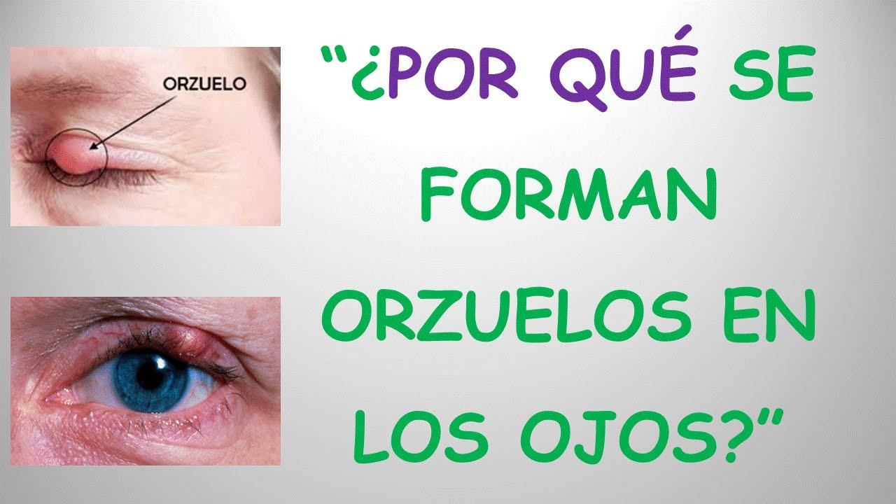 Por qu se forman orzuelos en los ojos respuesta for Como se cocinan los percebes