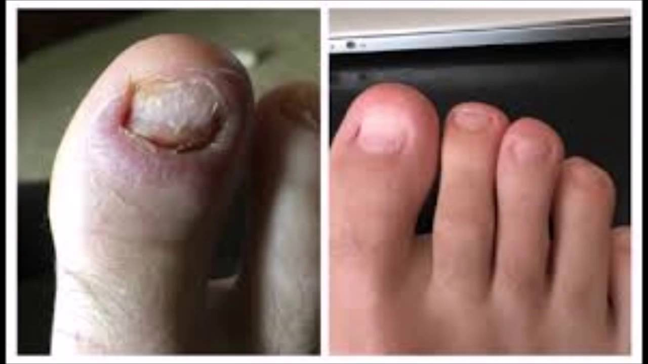 How To Know If I Have Anese Toenail Fungus Prescription For You