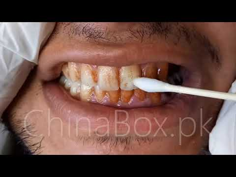 Lanbena Teeth Whitening Essence Homely Pk Online Shopping Youtube
