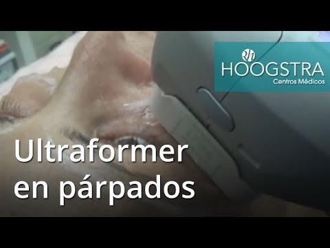 Ultraformer en párpados (17125)