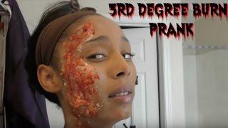 3rd Degree Burned Prank ????