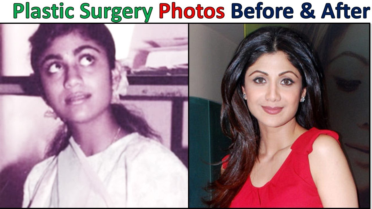 top plastic surgery photos of popular bollywood actresses - before
