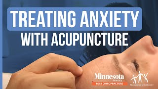 Treating Anxiety Acupuncture