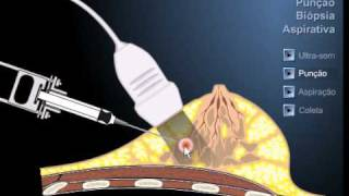 Punção da mama - FNAB - fine needle aspiration biospy