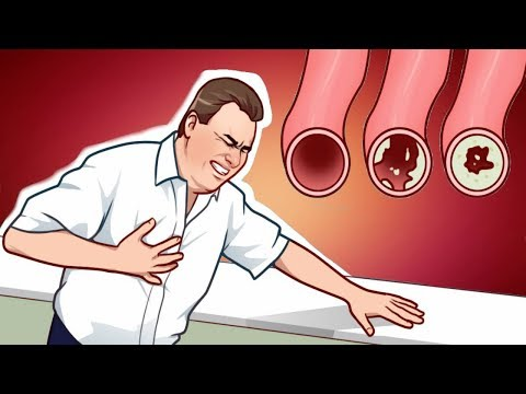 7-lifestyle-changes-that-will-clean-your-arteries-naturally-and-protect-you-from-heart-attack