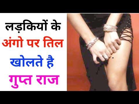 लड़कियों के अंगो पर तिल खोलते है गुप्त राज ! meaning of moles on our body