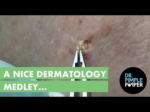 A nice Dermatology Medley