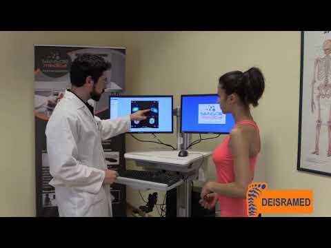 Analiza posturala Clinica Deisramed Craiova