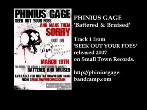 Phinius Gage - Battered & Bruised