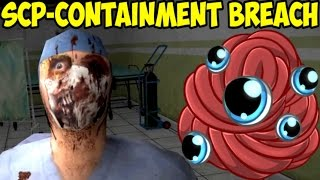 SCP – Containment Breach | Хирург и орущие глаза SCP-066