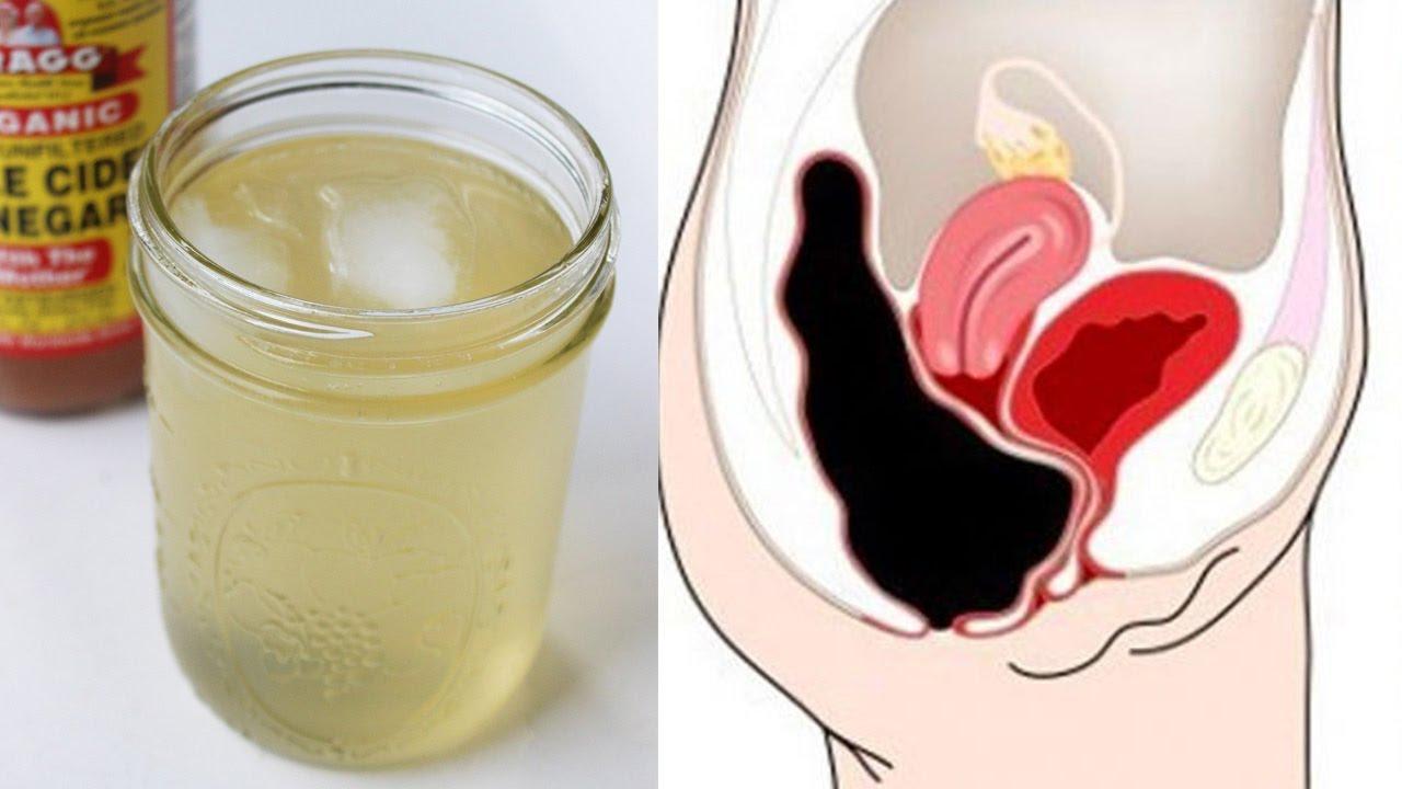 detox drink apple cider vinegar and honey for relieve constipation