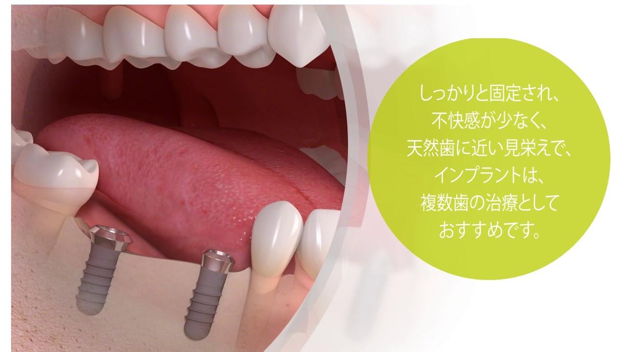 インプラント 埼玉 糖尿病