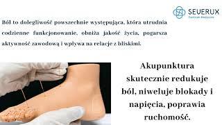 Akupunktura. Lekarz Joanna Czopek-Majewska.
