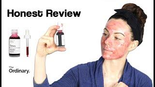 the Ordinary AHA+ BHA Peel: Tips, Honest Review & Followup on Dry Skin