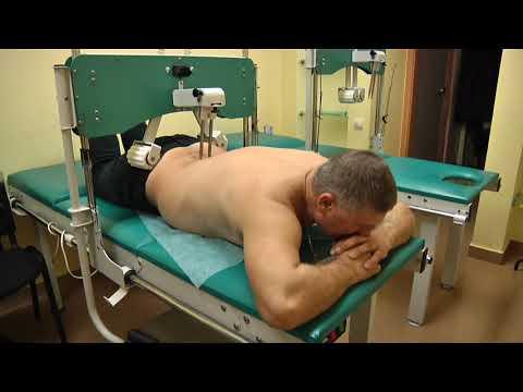 межпозвонковые грыжы.лечение 13 02 18