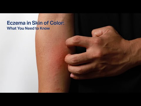Eczema in skin of color: What you need to know