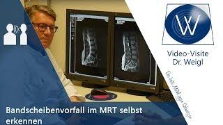 Eigenen Bandscheibenvorfall im MRT (Röhre) erkennen & Merkmale wissen - Hilfe bei d Selbstbefundung