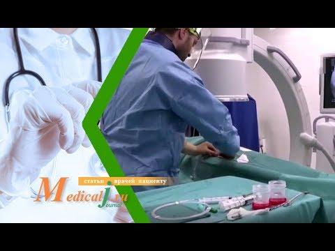 Видео из операционной: эмболизация маточных артерий при миоме матки