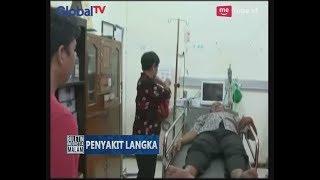 Berawal Dari Sakit Perut, Ternyata Setelah Diperiksa Perut Pria Ini Berisi Benda Logam - BIM 07/07