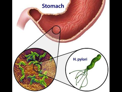 h bacterii pylori pierdere în greutate)
