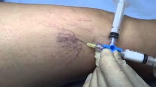 Venas inyeccion varicosas de
