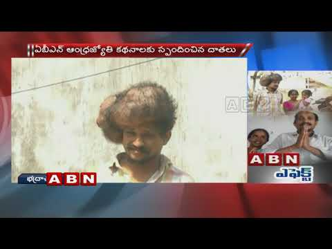 ABN Effect | Cancer Survivor Thanks ABN Andhrajyothy And Donors Who Saved His Life | ABN Telugu