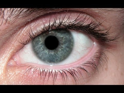 surgery turn brown eyes blue eyes doctor report