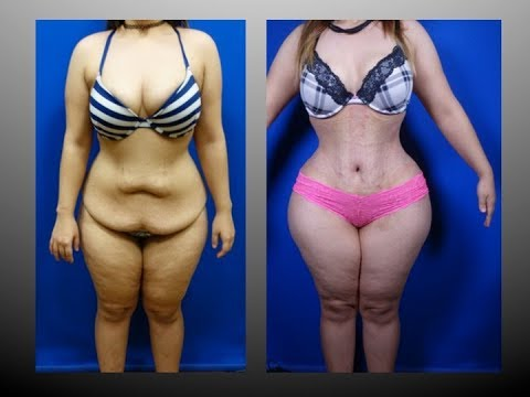 Tummy Tuck Before And After Pictures Dr Cortes Plastic