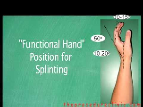 Ulnar Amp Radial Gutter Forearm Splint Application Youtube