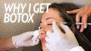 Why I Get Botox Injections for Wrinkles and More! | Beauty with Susan Yara