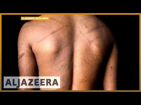 🇱🇰 Evidence of ongoing torture of Sri Lankan Tamils   Al Jazeera English