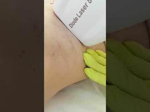 лазерная эпиляция малибу краснодар