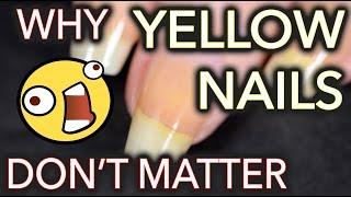 Why yellow nails DON'T MATTER / Don't whiten your nails