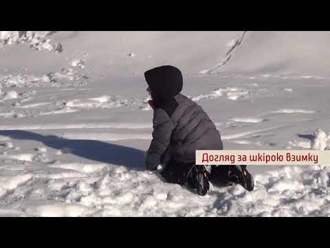 TV7plus Телеканал Хмельницького. Україна: ТВ7+. Мамині нотатки. Випуск 22. Догляд за шкірою взимку.