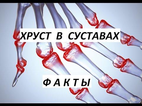 Хруст в суставах: причины и лечение, профилактика